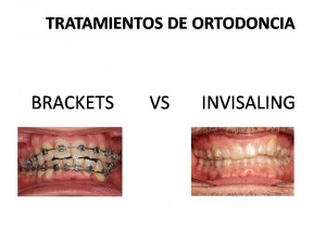 BRACKETS VS INVISALING