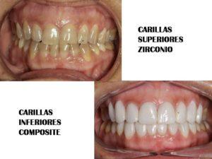 CARILLAS ZIRCONIO COMPOSITE