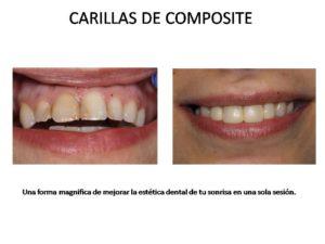 carilllas